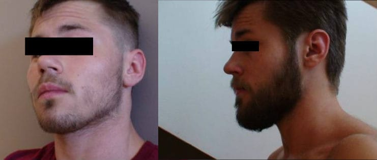 rogaine facial hair before and after results