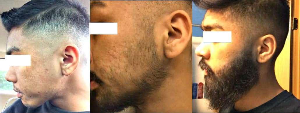 asian man three panel before and after results after minoxidil use