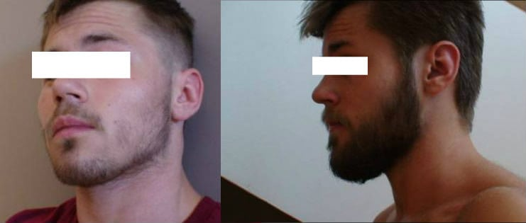 before and after result from a man using rogaine on his cheeks