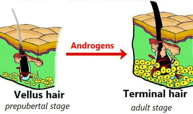 androgen effects on hair follicle