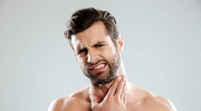 man with beard dandruff on his face