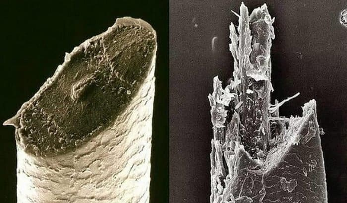 razor vs electric shaver beard hair microscopic
