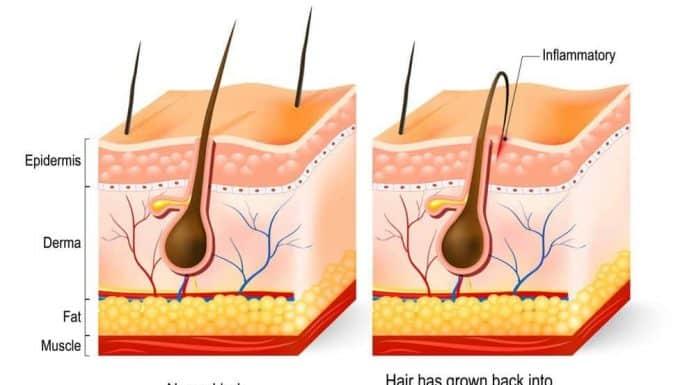ingrown beard hair illustration