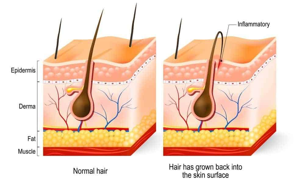 ingrown beard hair illustration