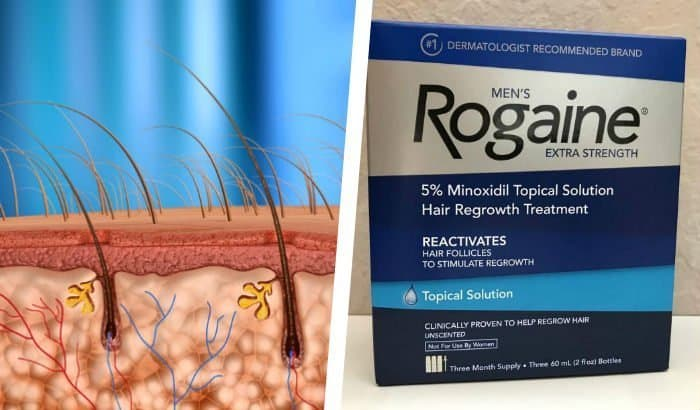 illustration of beard hair follicles with rogaine box