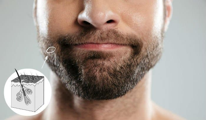 facial hair follicle illustration