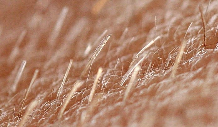 vellus beard hairs