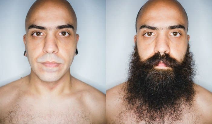 before after beard